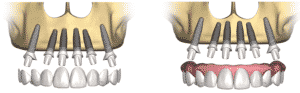 dental-implant-prosthetic-procedure2