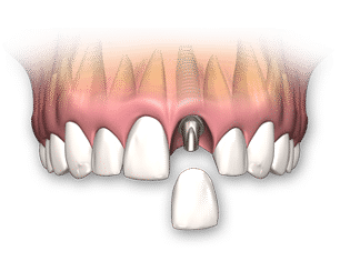 dental-implant-single
