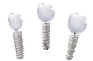 pf_implantat-sortiment