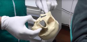 Modellino stereolitografico per progettazione inserimento impianti dentali zigomatici pterigoidei