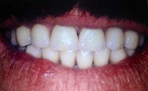 Transformation dents jaunes colorées facette dentaire dentiste Paris 16