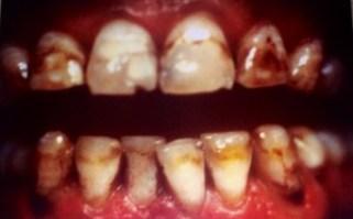 Dent gravement jaunies. Blanchiment impossible