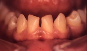 Correction d'espace dentaire par facette