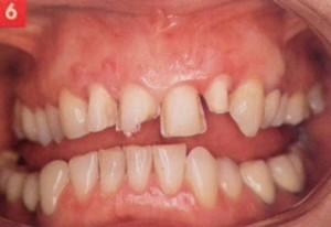 Vue des dents préparées pour les facettes en céramique