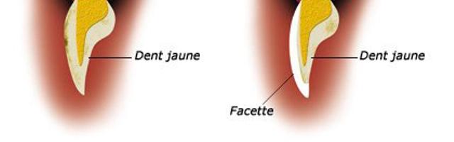 Les facettes céramiques dentiste Paris 16