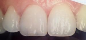Après pose facette dentaire paris 16 dentiste Amouyal