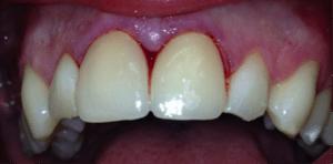 Pose des nouvelles facettes dentaires paris 16