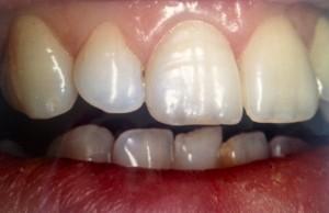pose de facette dentaire dentiste amouyal Paris 16