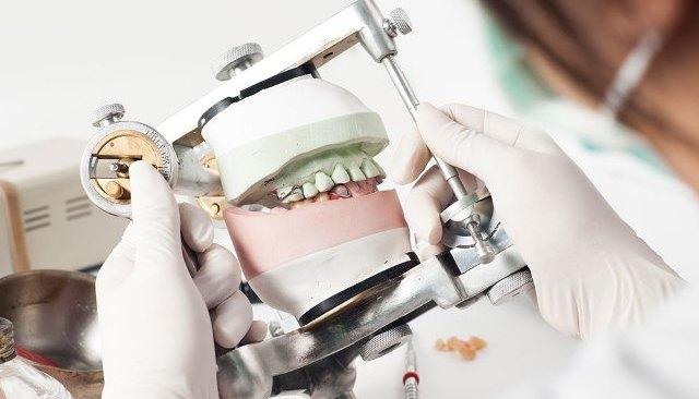L'analyse pré-implantaire