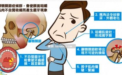顳顎關節問題