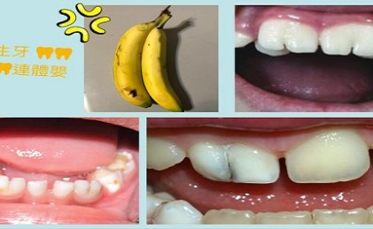 🦷🦷可愛的連體嬰牙🦷🦷