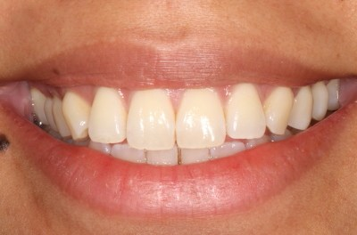 How to Take Great Dental photography and Save £1000