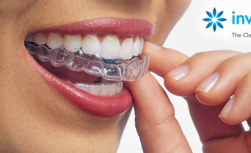 Woman inserting Invisalign tray into mouth to straighten her teeth