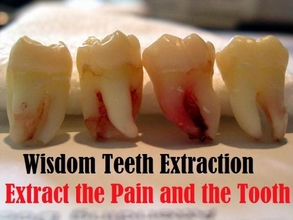Foods To Eat After Wisdom Teeth Extraction