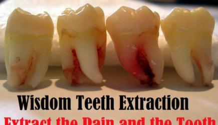Wisdom Tooth Dry Socket- The After Effect - Dentist Says