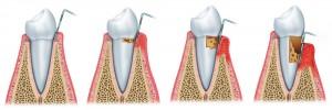 Diş Taşı ve Dis Eti İltihabı