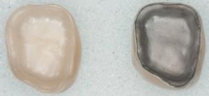 metal ve zirkonyum porselenler