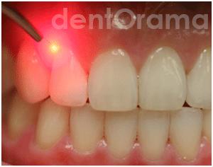 Diş Hekimliğinde lazerin kullanım alanları