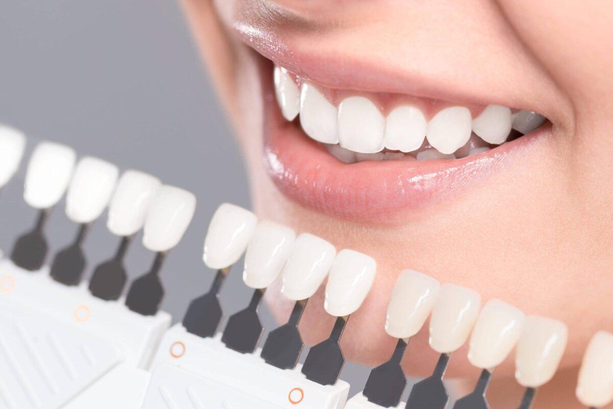 Color carillas dentales