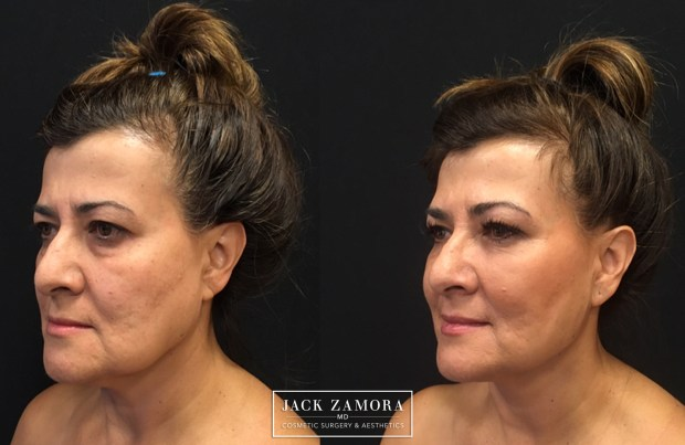 Maria Portugal-Trujillo had a J-Plazty with Adipose Stem Cell Rejuvenation.
