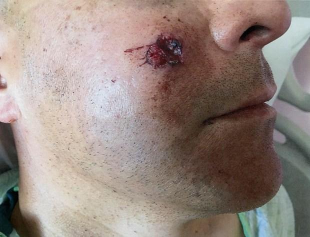 Aurora police officer shot in face ...