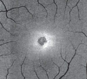 Adaptive optics image of Payne's retina.