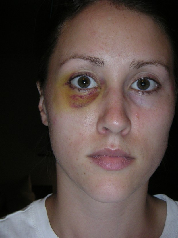 Rob Porter's ex-wife Colbie Holderness is pictured in a photo from 2005, when she says Porter gave her a black eye on an Italy trip.