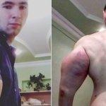 Supermúsculos: Homem ganha corpo gigantesco injetando óleo synthol