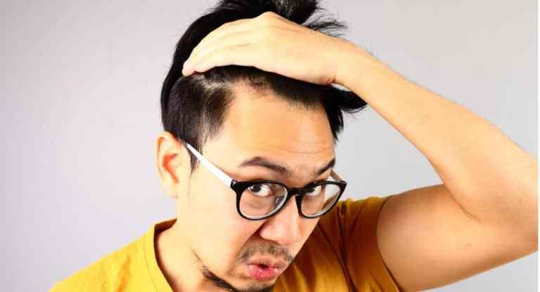 síntomas de alopecia areata