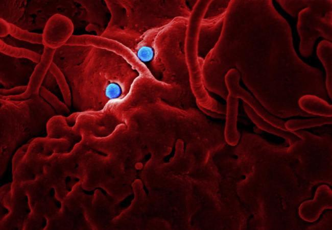 Lockdown og omdisponering av helseressurser fører til fremgang for sykdommer som tuberkulose og malaria.