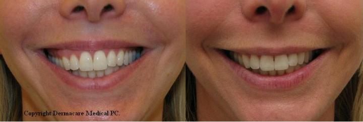 Gummy Smile Before And After Botox Treatment