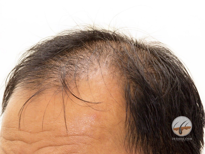 PRP for hair loss & baldness: does it work?