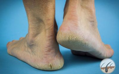 How to get rid of Cracked heels?