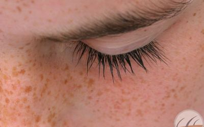 Facts about freckles: know from a dermatologist