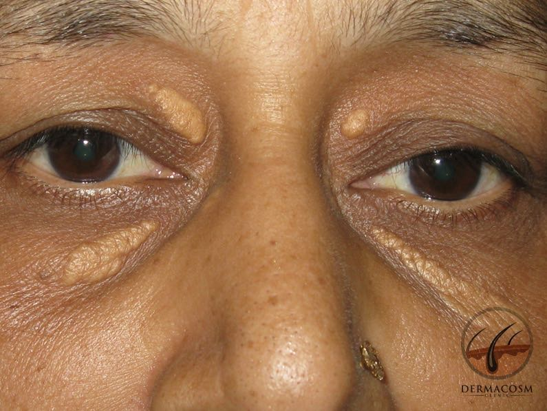 What is xanthelasma?
