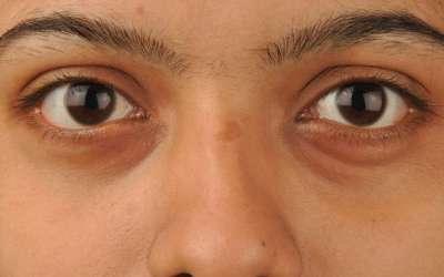 Dark Circles under eyes – do's and don'ts