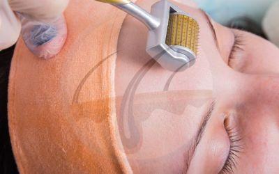 Dermaroller: a simple procedure for acne scars