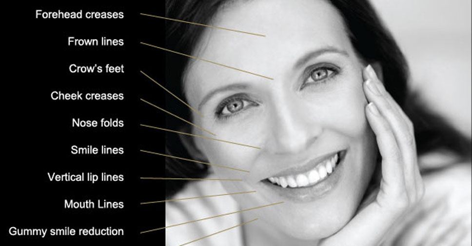 Anti Wrinkle Injection Anti-Wrinkle Injections