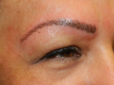 After Permanent Eyebrows a