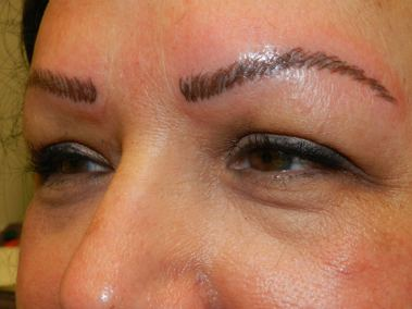 After Permanent Eyebrows d