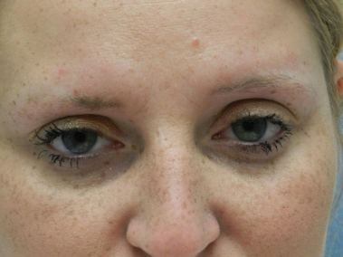 Before Permanent Eyebrows a