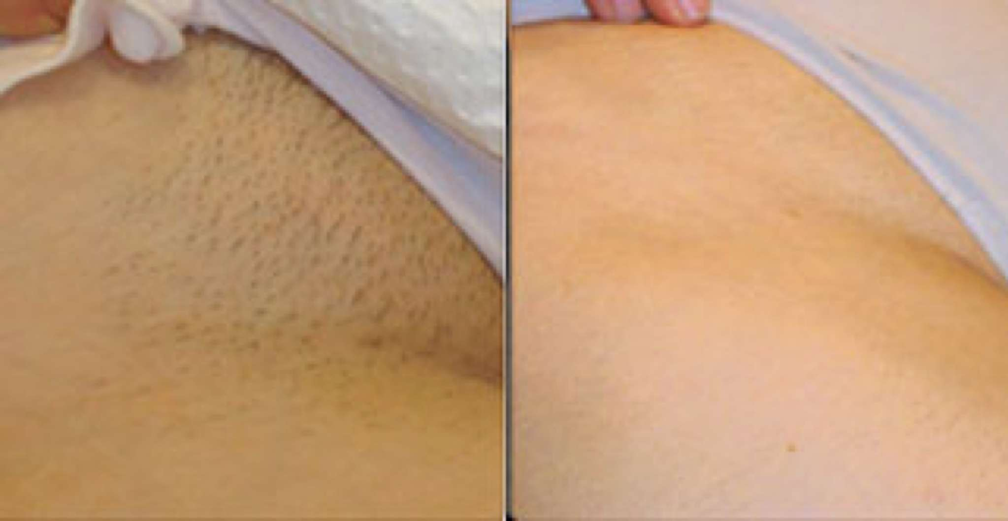 Brazilian Wax Pictures Before And After Best Naked Ladies
