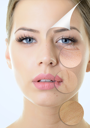Botox Treatment in delhi