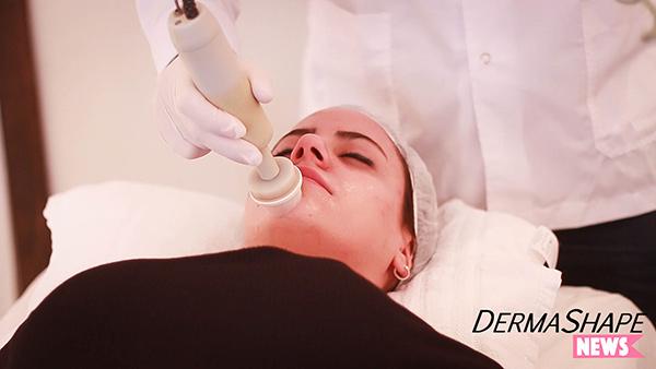 limpieza-facial-con-extraccion-de-puntos-negros