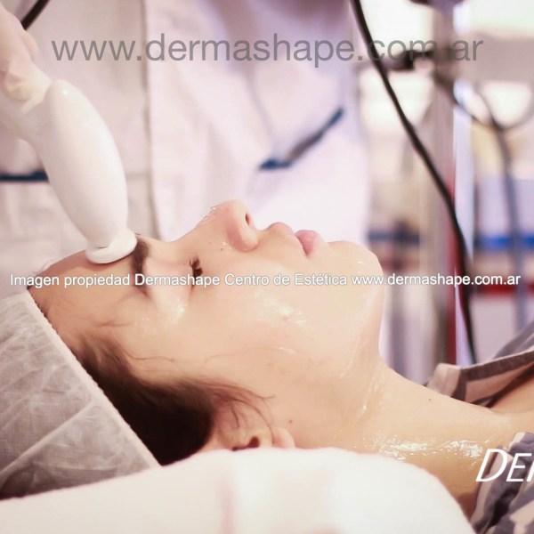 arrugas-en-la-frente-lineas-ed-expresion-tratamientos-botos-buenos-aires-min