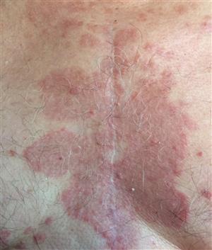seborejinis dermatitas