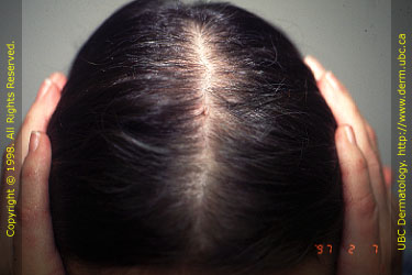I Am A Woman With Hair Loss Im Only 25 Is This A Deal