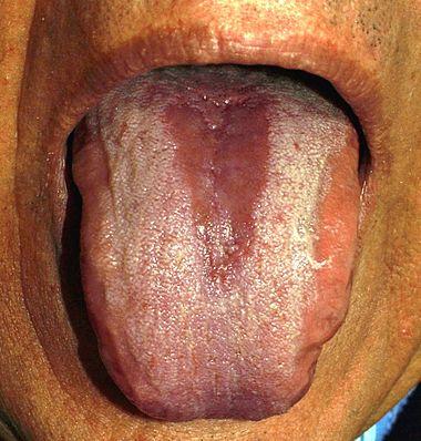 bébé langue noire