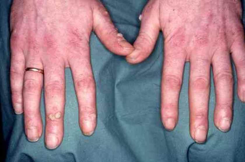 Verrues des doigts chez un boucher