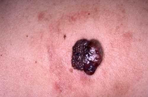 Melanome nodulaire